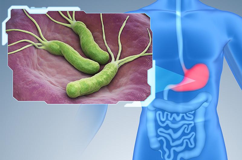 ピロリ菌に感染すると胃がんリスクが高まる